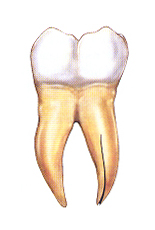 Frequently Asked Questions – Endodontic practice of Tom